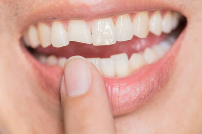 Chipped Tooth Example